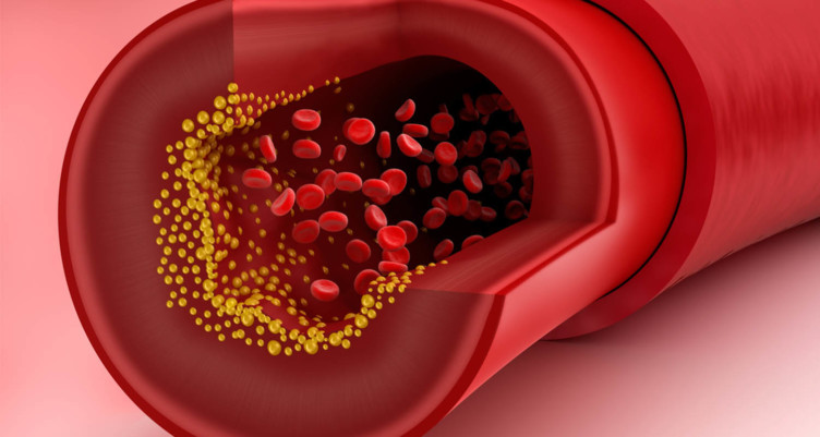 Everything You Know About Cholesterol Is Wrong