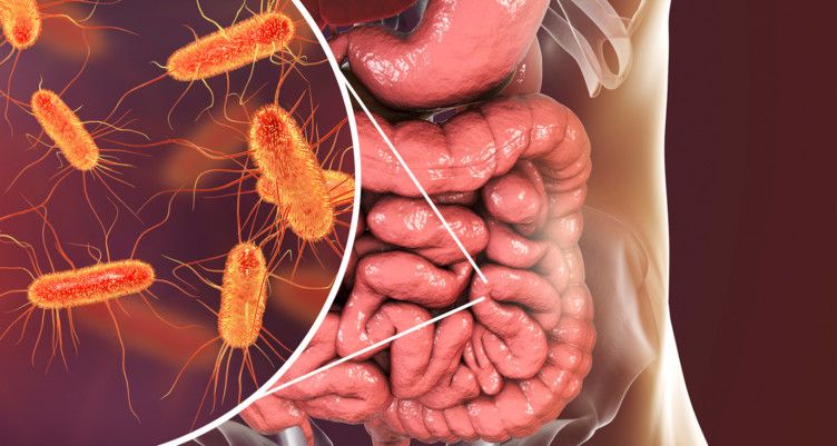 Illustration of leaky gut syndrome