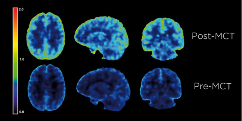 A PET scan of a brain before and after consuming Bulletproof Brain Octane C8 MCT Oil